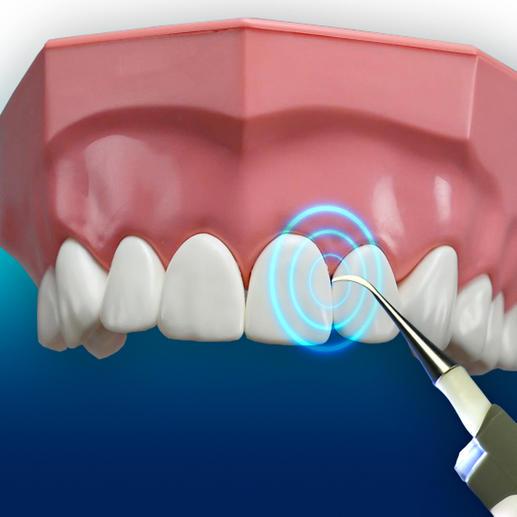 3000vibrations/minute permettent le nettoyage des interstices dentaires les plus étroits.